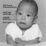 Photo_of_baby_with_FAS
